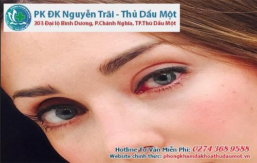 Bệnh lậu ở mắt rất nguy hiểm có thể gây mù lòa