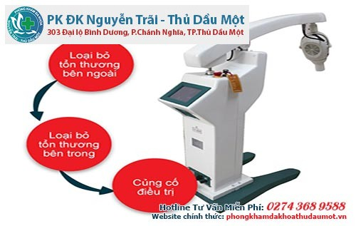 Phương pháp ALA – PDT - chữa sùi mào gà hiệu quả nhất hiện nay