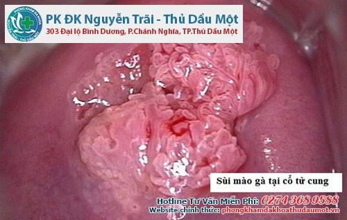 Dấu hiệu của sùi mào gà có thể xuất hiện bên trong cổ tử cung