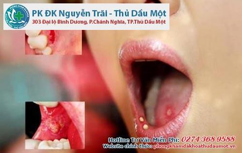 Bạn nên đi khám ngay khi thấy các dấu hiệu của sùi mào ở miệng