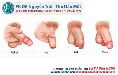 Các bệnh lý liên quan đến bao quy đầu mà nam giới