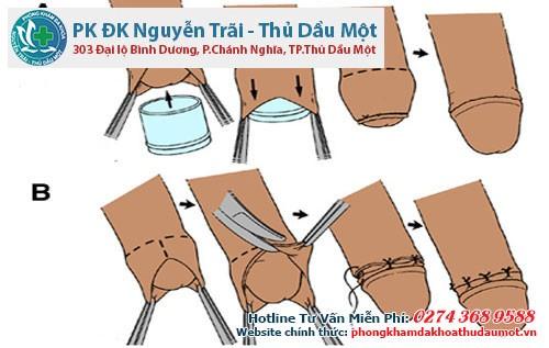 Các bước tiểu phẩu cắt bao quy đầu tại Đa khoa Nguyễn Trãi - Thủ Dầu 1