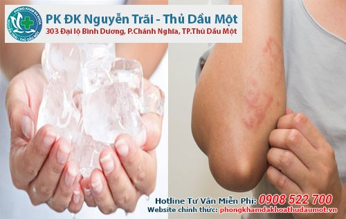 Việc chườm đá lạnh sẽ có công dụng giúp làm giảm cơn đau và ngứa
