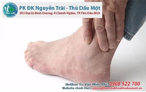 Gout  là 1 trong những căn bệnh ảnh hưởng nghiêm trọng đến sức khỏe nam giới nói chung