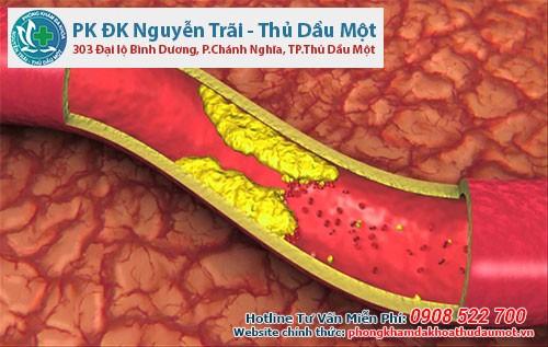 cholesterol xấu - LDL trong máu tăng lên có thể là do huyết thống di truyền