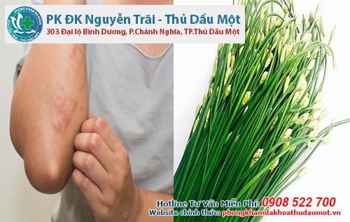 Các phương pháp trị mề đay với lá hẹ