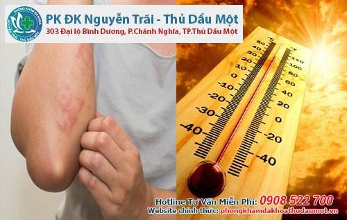 Những cách phòng tránh nổi mẩn ngứa khi trời nắng nóng