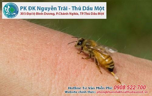 Cần làm gì khi bị nổi mề đay do ong đốt?