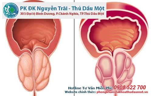 Tìm hiểu về tình trạng tăng sinh tuyến tiền liệt ở nam giới