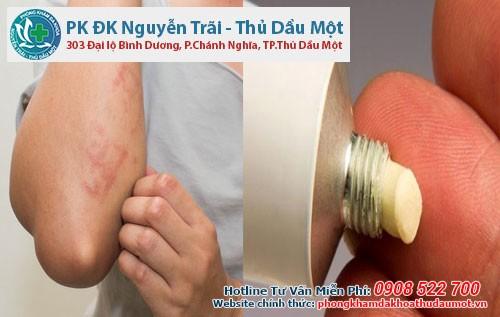 Một số loại thuốc mỡ được dùng để điều trị chứng ngứa chân