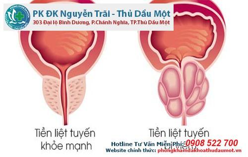 Tìm hiểu về các dạng viêm nhiễm tuyến tiền liệt ở nam giới