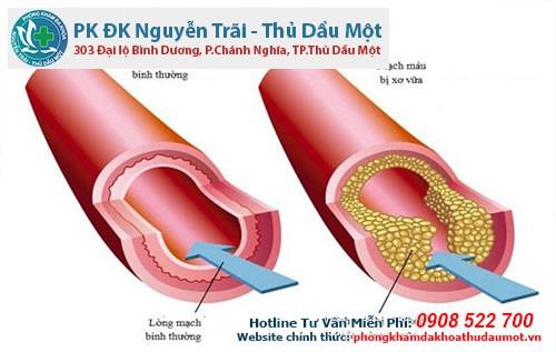 Tìm hiểu về tình trạng xơ vữa động mạch ở nam giới